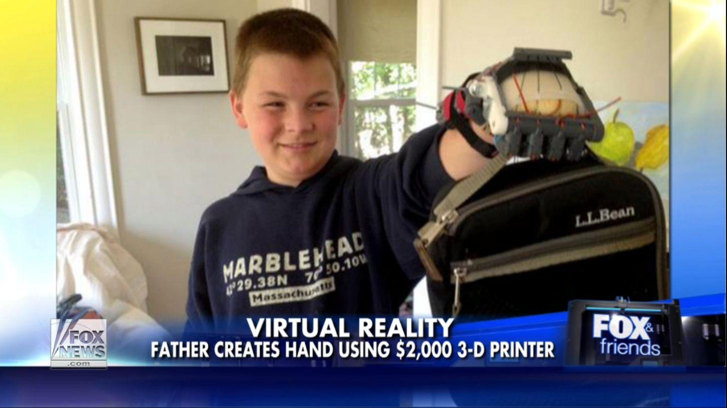 Πατέρας κατασκευάζει προσθετικό χέρι για το 12χρονο γιο του με τη βοήθεια ενός 3Δ εκτυπωτή